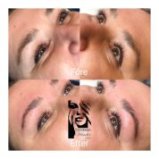 Brow lift/Brow lamination